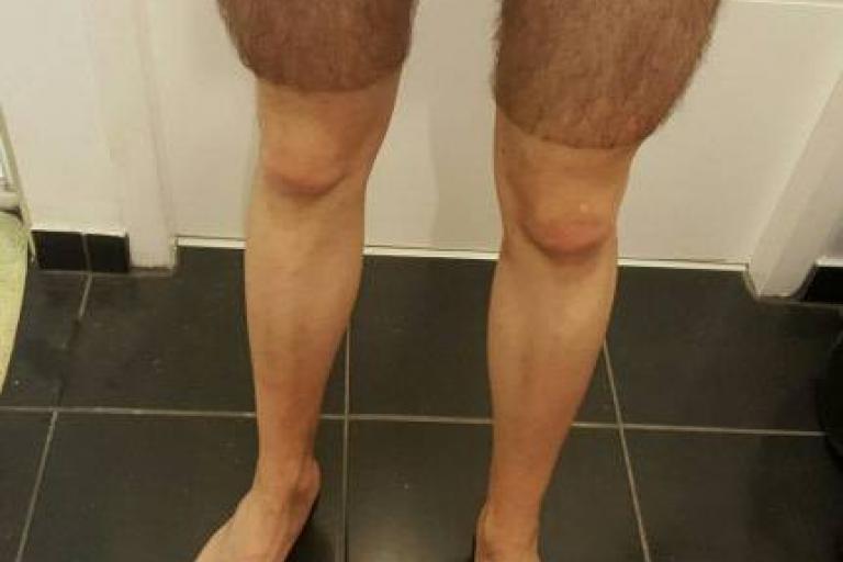 Summer shorts (picture - Imgur user Hyddrox).jpg