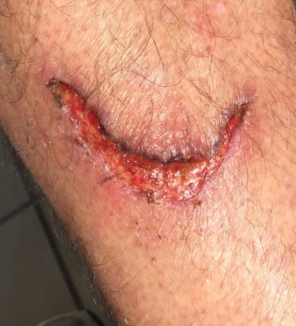 Disc brake rotor injury 10 days after (picture courtesy Peter Curtis-Brown).jpg
