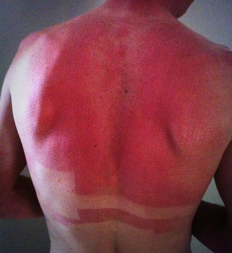 Froome sunburn