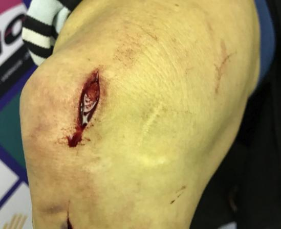 katie compton disc brake injury.png