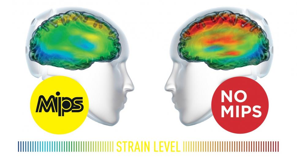 MIPS strain - 1