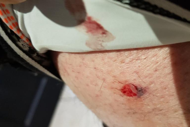 Cyclist shot with air rifle pellet (via Warwick Lanterne Rouge Cycling Club on Twitter)