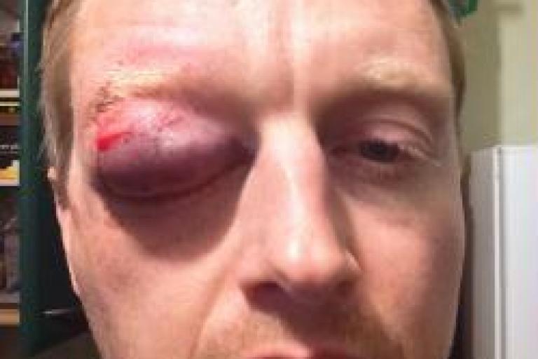 Egg assault (Thames Valley Police)