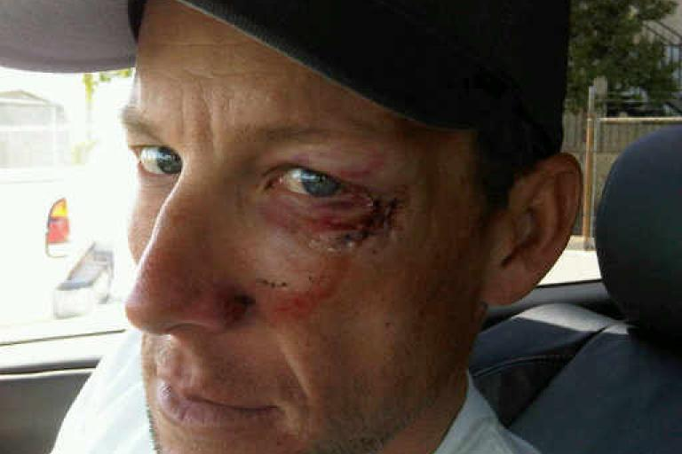 Lance Armstrong crashes out of Stage 5 of Tour of California