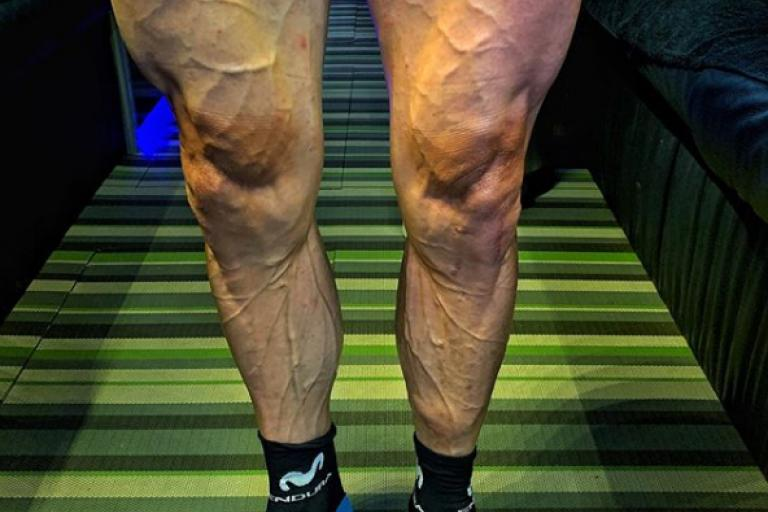 Jose Joaquin Rojas mid-Giro legs (via Instagram).PNG