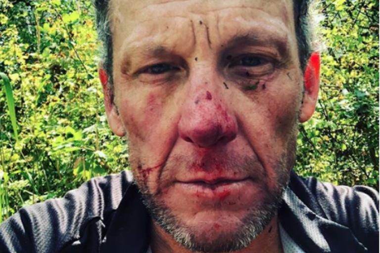 Lance Armstrong crash injury